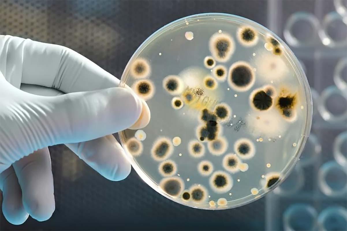 Бактериальный вагиноз: симптомы и лечение. фото.