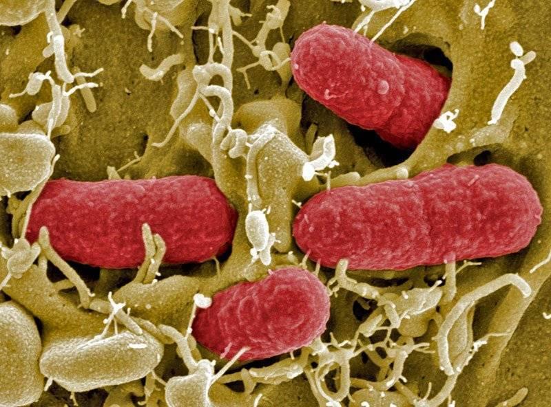 Аэробные и анаэробные бактерии что это такое